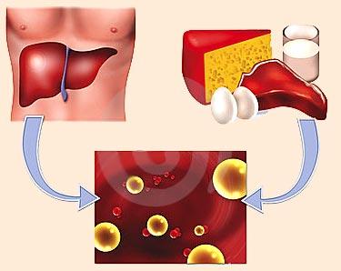 Аппарат лечение атеросклероза