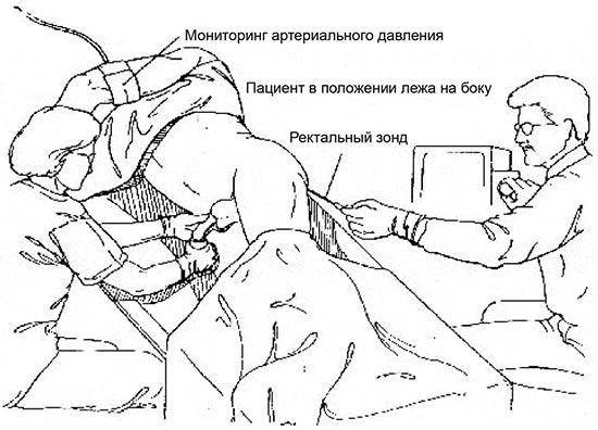 Эякуляция в прямую кишку