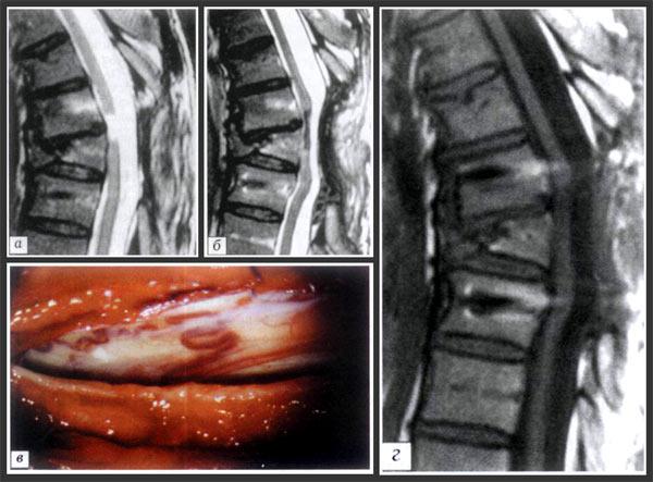 Сломан позвоночник задет спинной мозг