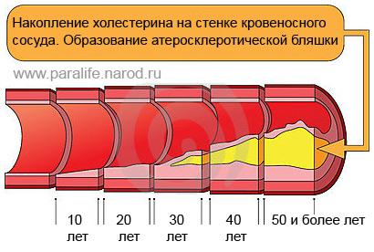 Анализ крови на холестерин и алкоголь